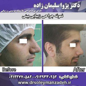 جراحی-بینی
