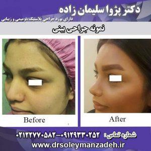 خطرات جراحی بینی