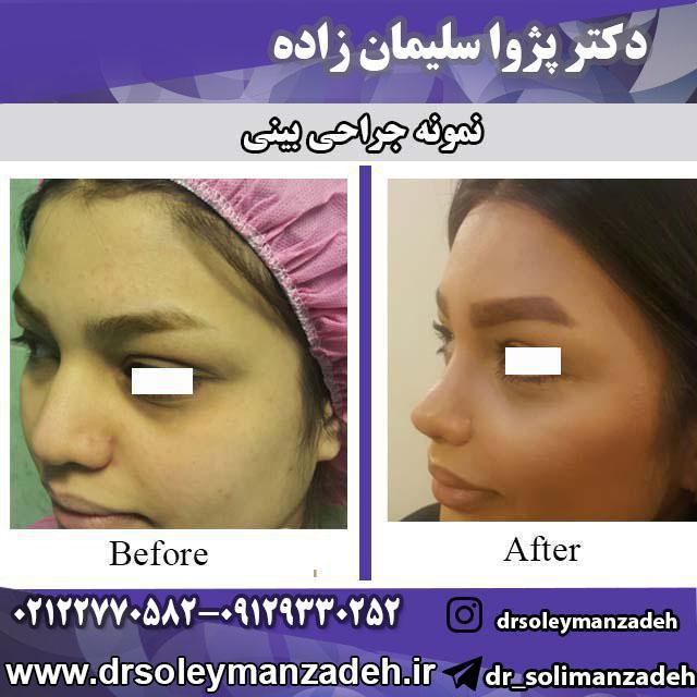 نمونه زیبای جراحی بینی