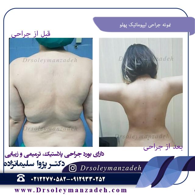 نمونه جراحی لیپوماتیک پهلو