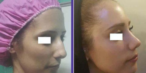 توصیه های دکتر سلیمان زاده پس از جراحی بینی