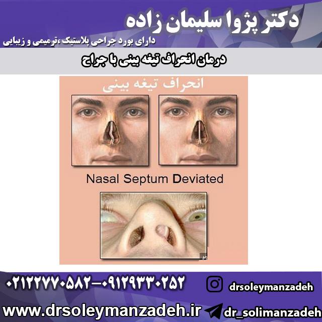 درمان انحراف تیغه بینی با جراحی