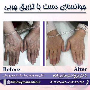 جوانسازی دست با تزریق چربی
