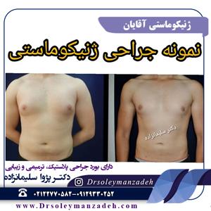 ژنیکوماستی یا جراحی کوچک کردن سینه در مردان