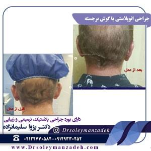 جراحی اتوپلاستی یا گوش برجسته