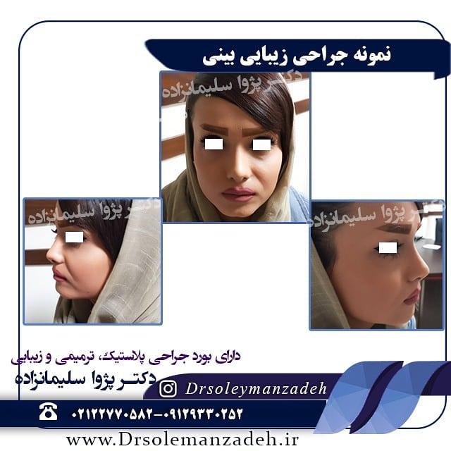 بهترین جراح بینی طبیعی در تهران