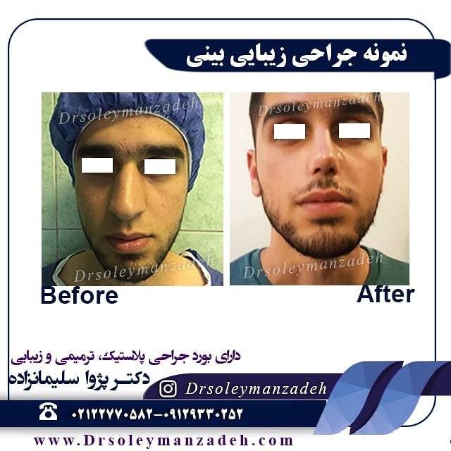 جراحی انحراف بینی در مردان