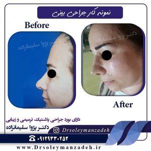 جراحی بینی گوشتی در تهران