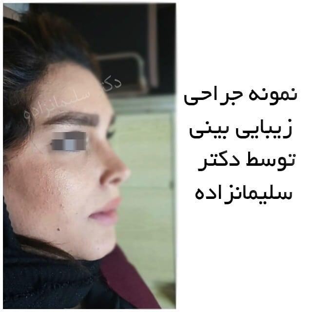 جراح زیبایی بینی در تهران