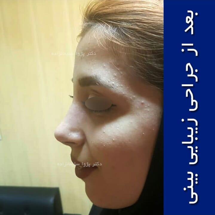 عمل بینی استخوانی در تهران