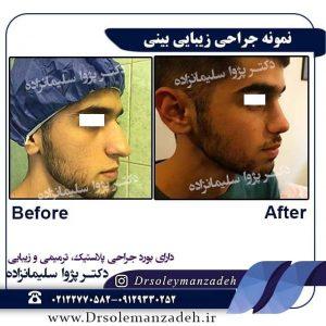 عمل بینی استخوانی در مردان