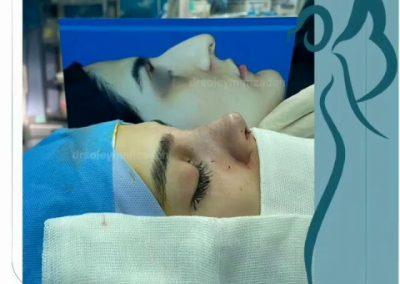 نتیجه جراحی زیبایی بینی در اتاق عمل